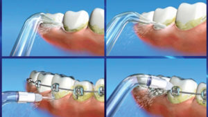How To Use A Waterpik | Guide To Water Flossing
