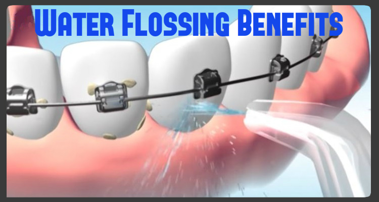 benefits-of-water-flossing