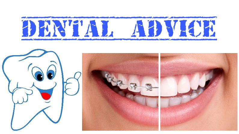 dental-advice-for-braces