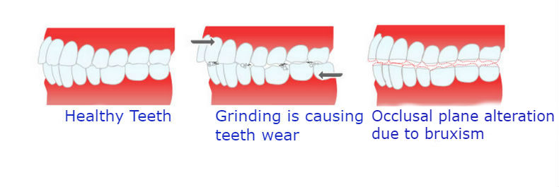 what-is-bruxism