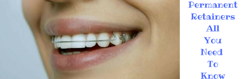 Permanent Retainers Information And Guidance Dental Dorks