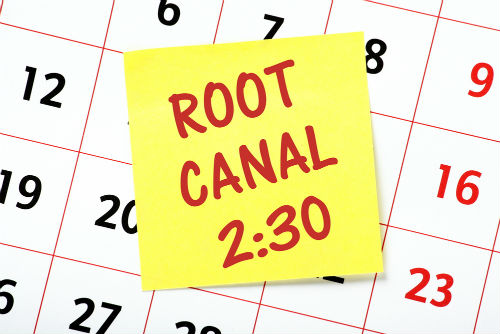 how long to do a root canal
