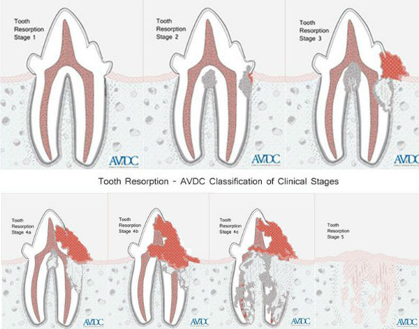 tooth-resorption-process