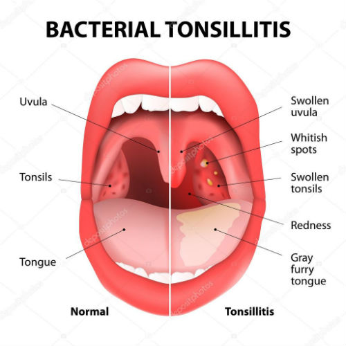how to Treat Tonsil Stones with a Waterpik Water Flosser