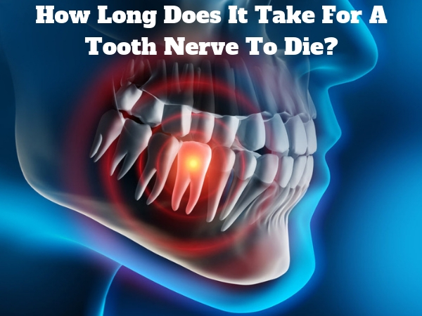 How Long Does It Take For A Tooth Nerve To Die_