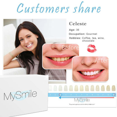 Best Teeth Whitening Kit Reviews And Buyer S Guide