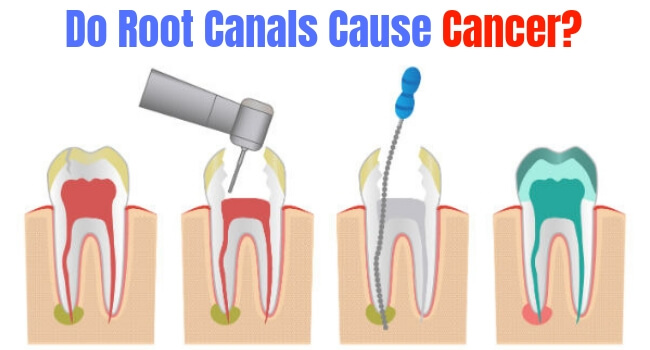 Do Root Canals Cause Cancer