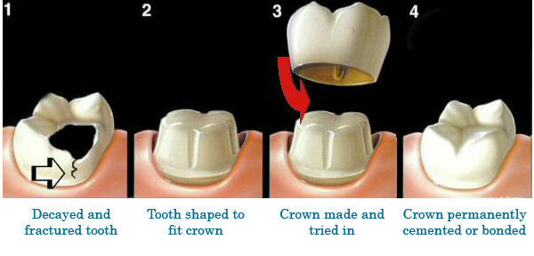 crowning teeth pain