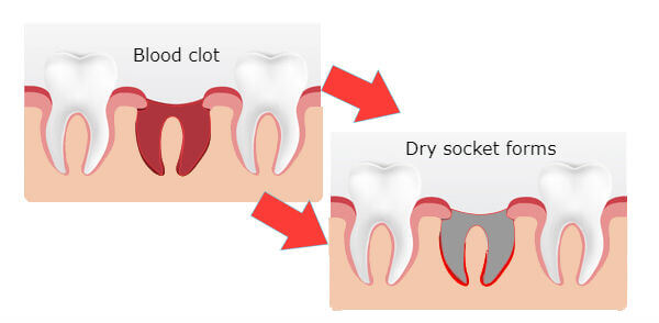 How To Tell If You Have A Dry Socket? | Dental Dorks