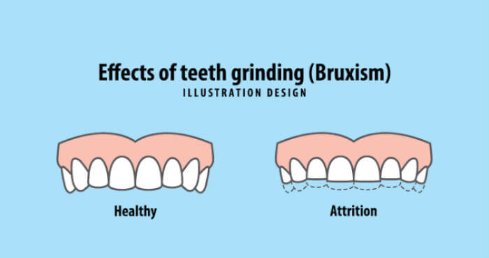 why do I grind my teeth
