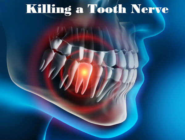 how to kill a nerve in your tooth