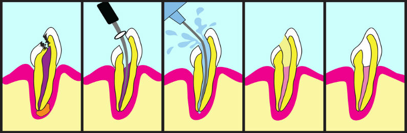 how do i know if i need a root canal or a filling