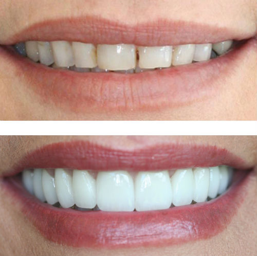 how long does tooth bonding last