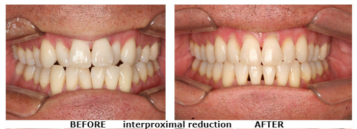 interproximal reduction