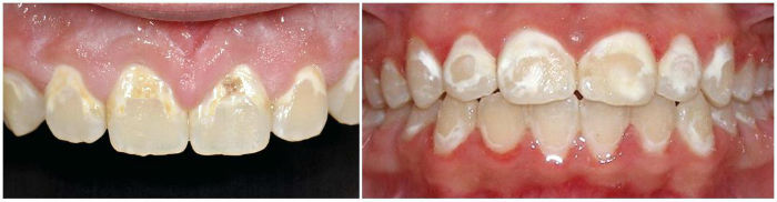 tooth decalcification