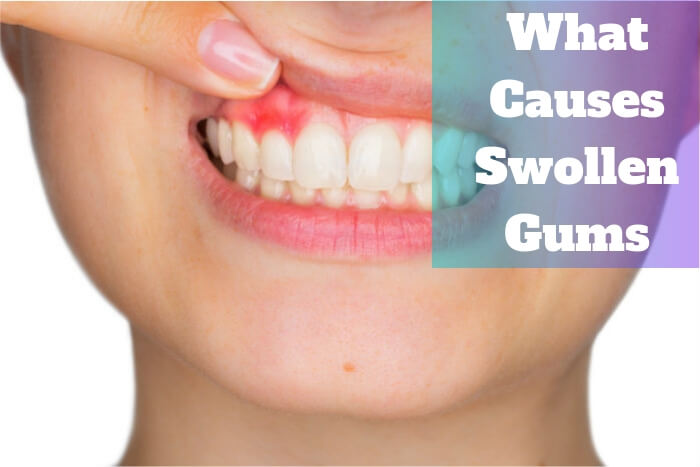 what does it mean when your gums are swollen