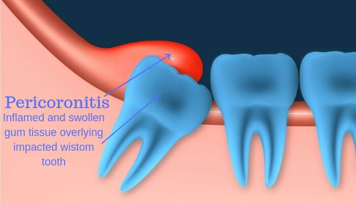 how long does pericoronitis last