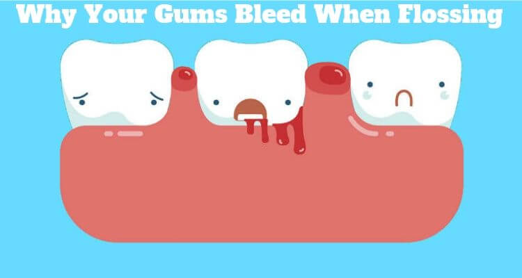 gums bleed when flossing
